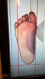 Scan Fuß