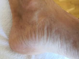 zurückgebliebene Hautfalten
